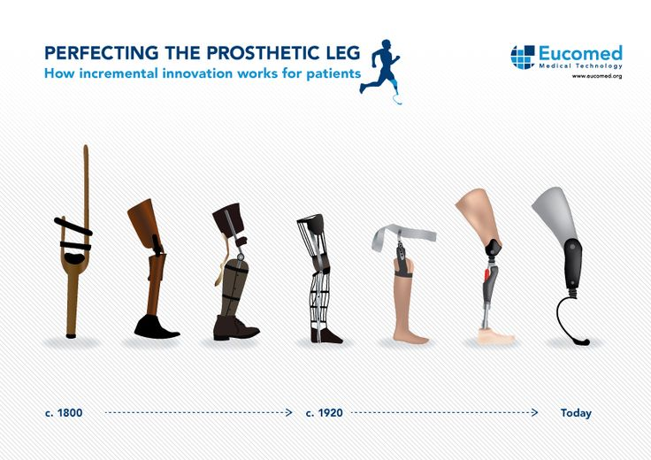 Technologische ontwikkeling medische hulpmiddelen.
