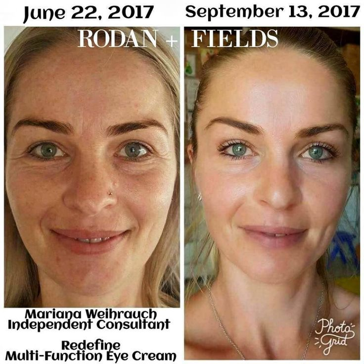 KISS your wrinkles and dullness Goodbye!! Just LK at Mariana's results using Rodan + Fields Redefine regimen and Multi-Function Eye Cream after just 3 months!!! She EASILY looks 10 years younger!!! Give us a few months & we'll give you back YEARS!!! Are YOU ready to get your GLOW back?! With our 60 Day Money Back Guarantee, you have nothing to lose! Message me Let's get YOU started TODAY!!✨ #RedefineYourAge #GetYourGlowBack #FoundationFreeandLovingit #AgingBackwards