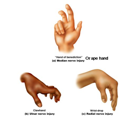 Hand nerve injuries More