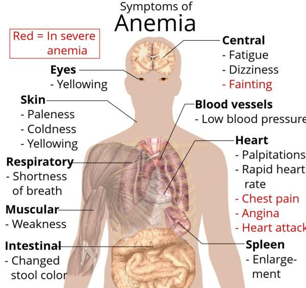 Anemia Cure Natural Food
