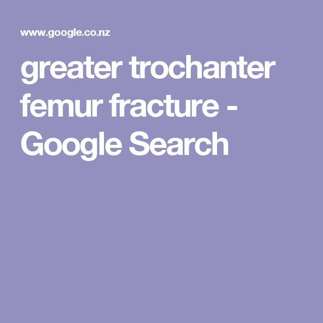 greater trochanter femur fracture - Google Search
