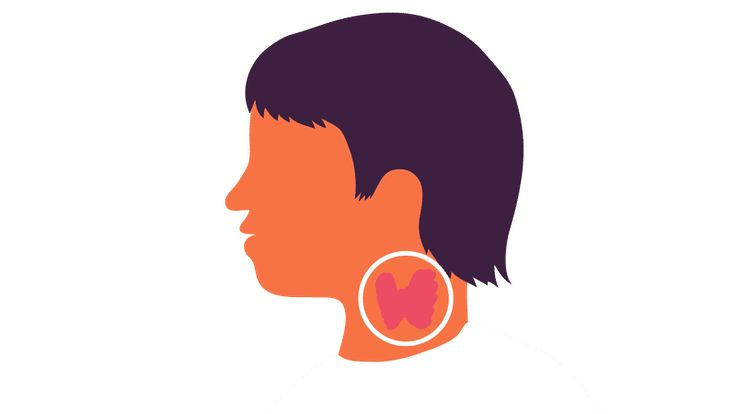 Get a better understanding of thyroid symptoms in men and women, including fatigue, weight gain and hair loss, and how they are treated.