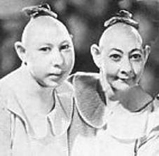 "Sideshow performers, ""Pinheads"", Microencephaly."