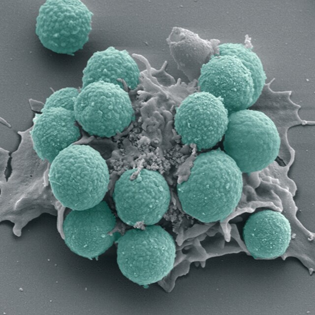 White blood cell in action