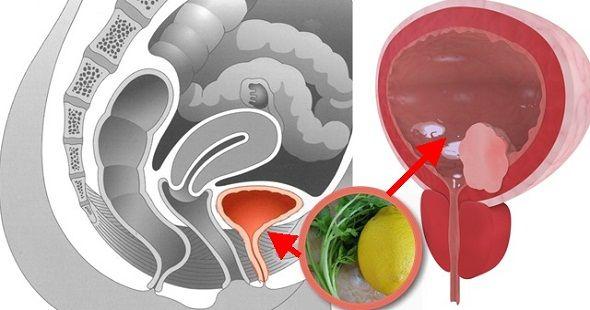 Cum sa cureti vezica urinara de infecție