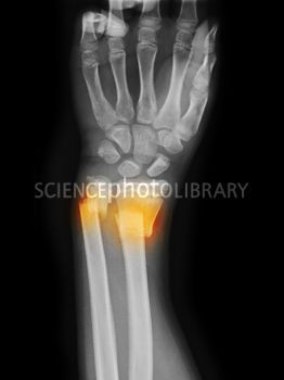 radius and ulna fracture (very similar to Jared's)
