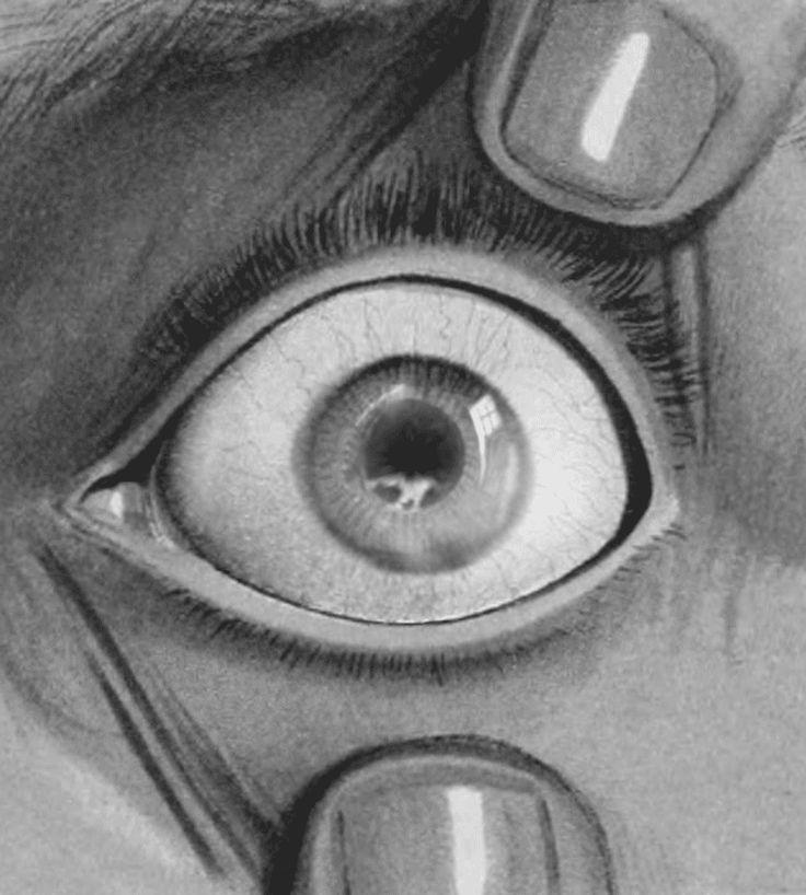 """billdomonkos: """" GIF: Bill Domonkos, 2015 (Image: Eye injuries and their treatment (1907) """""""