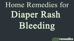 The severe diaper rash often leads to diaper rash bleeding. Use home remedies for diaper rash bleeding for quick relief.