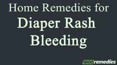 The severe diaper rash often leads to diaper rash bleeding. Use home remedies for diaper rash bleeding for quick relief.