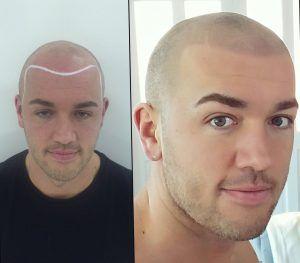 WHY women just LOVE bald guys!---See this post.   #baldguys #attractivebaldmen #baldmen #shavedhead #hairstylesformen#skalp #smp #scalpmicropigmentation #scalpmicro #micropigmentation #microscalppigmentation #headtattoo#hairlineink #hairtattoo #hairlosscure