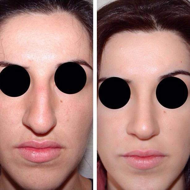 Before And After Bulbous Nose Rhinoplasty Example Photos Bulbous Nose Rhinoplasty Rhinoplasty Before And After