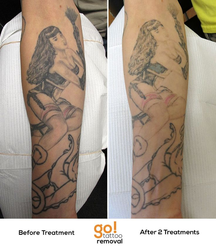 Making progress after 2 laser tattoo removal treatments on for Natural remedies for tattoo removal