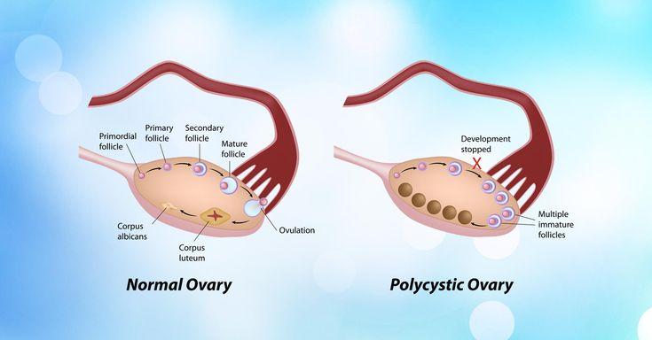 Ayurvedic Treatment For PCOS