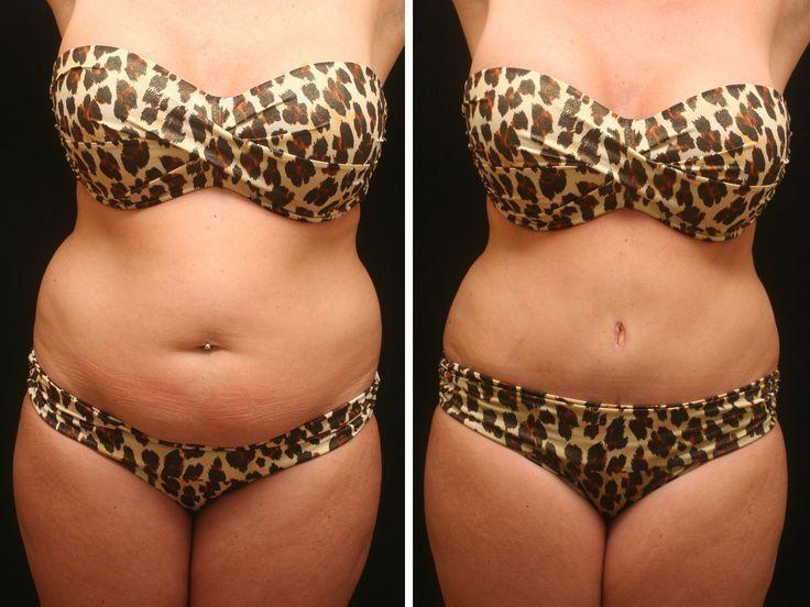#deposits #Fat #fro #large #Liposuction #medium