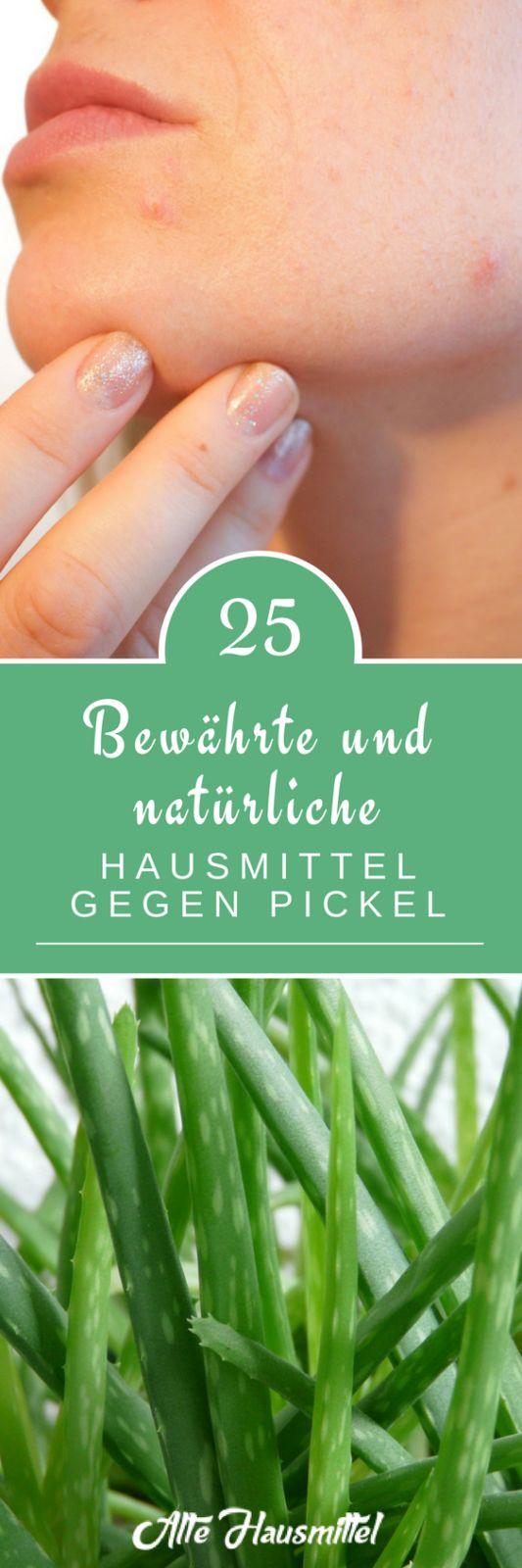 25 bewährte und natürliche Hausmittel gegen Pickel
