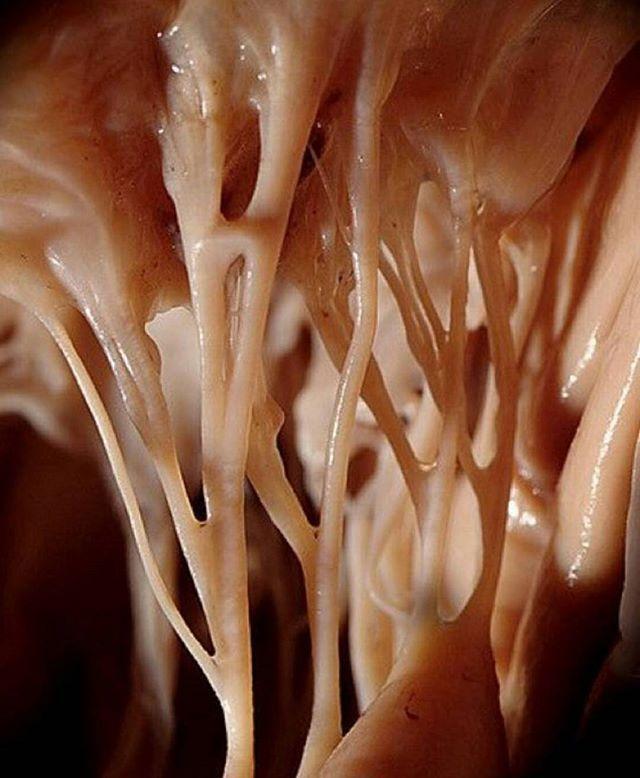 Se conoce como CUERDAS TENDINOSAS a las tendones cardíacos que conectan los músculos papilares a la válvula tricúspide y a la valvula mitral.