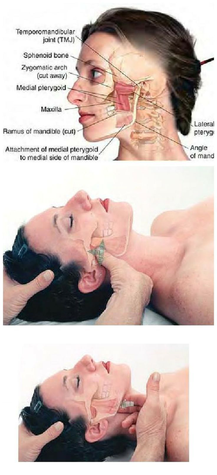 Massage Therapy ..........TMJ syndrome can be relieved through examination and treatment of the lateral and medial of the pterygoid muscles.......The Pterygoids are jaw (temporomandibular joint, or TMJ) muscles that radiate in a winglike pattern .....Kur ♥