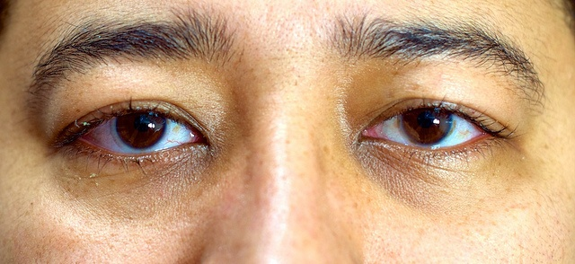 Olhos Dia 6 após cirurgia laser PRK de correção de miopia by Caio R. N. Pereira, via Flickr http://minhacirurgia.wordpress.com/