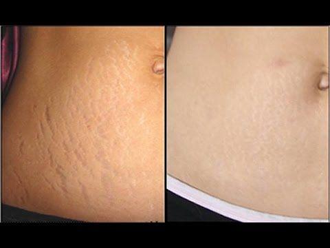 Elimina en 7 días la flacidez abdominal . ¡¡ COMPROBADO !! - YouTube