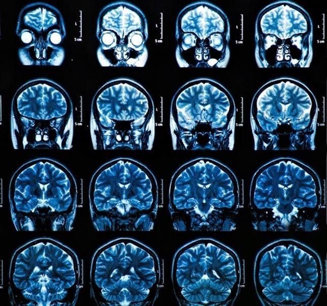 Un nuevo anticuerpo trata la lesión cerebral traumática