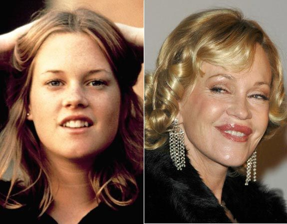 Melanie Griffith Plastic Surgery Photo