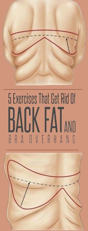 Here Are 5 Exercises That Get Rid of Back Fat & Bra Overhang!!! – Health remedies