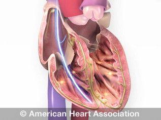 Implantable Cardioverter Defibrillator (