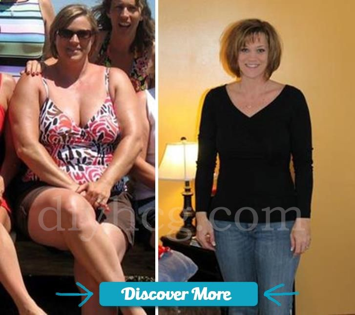 View the full story to this HCG diet before and after story and see TON of more pictures from people who did the HCG diet… amazing results! www.diyhcg.com #fitnessbeforeandafterpictures, #weightlossbeforeandafterpictures, #beforeandafterweightlosspictures, #fitnessbeforeandafterpics, #weightlossbeforeandafterpics, #beforeandafterweightlosspics, #fitnessbeforeandafter, #weightlossbeforeandafter, #beforeandafterweightloss