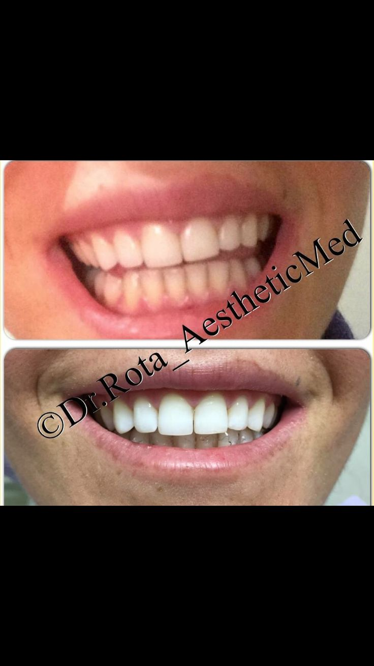 Theeth  Whitening  ( professional)