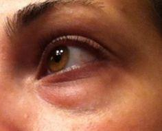 Como reduzir as olheiras naturalmente