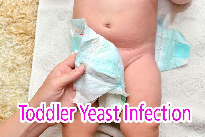 Toddler Yeast Infection