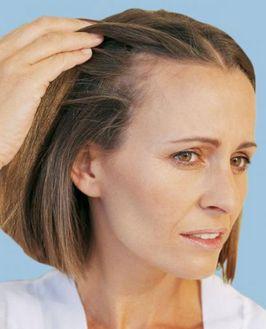 выпадение волос у женщин http://giomat.ru/info/hair-loss-in-women.html