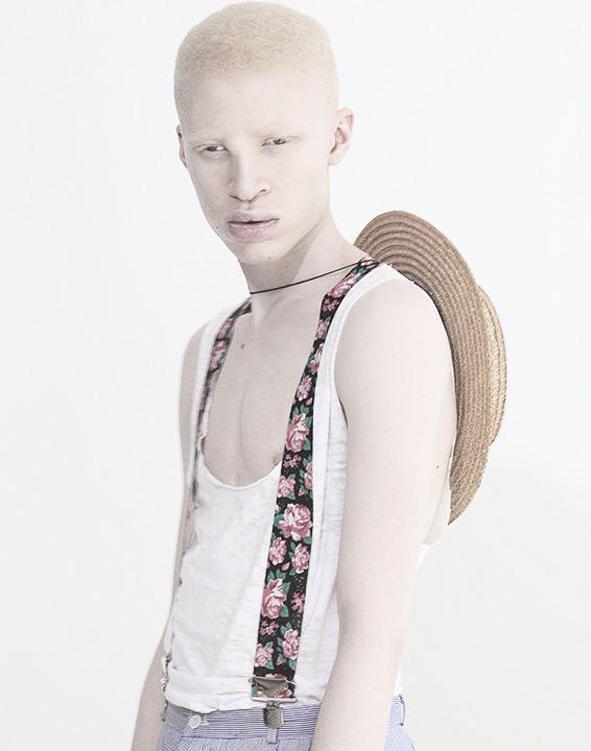 Известные модели-альбиносы: быть не таким как все не значит быть изгоем. - PODIUM.life