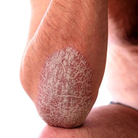 best 25+ plaque psoriasis ideas on pinterest | psoriasis cream, Skeleton