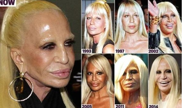 Plastic Surgery Gone Wrong: The GIANT List of 75 Worst Plastic Surgery