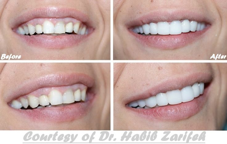http smile veneer com отзывы
