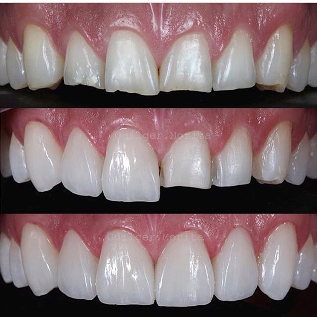 @dr.alexguilger #restorativedentistry#veneers#dentist#dentistry#estheticdentistry#composites#3M#ivoclair#tokuyama#shofo#clinic#invasiline#surgery#dentalsurgery#dentalcollege#sirona#periodontics#prosthodontics#endodontics#pedodontist#odontologia#odonto#dentalsurgery#gingivectomy#dentalphotography#clinics#doctors#medicine#biology#art#medicali