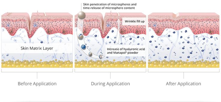 A diagram showing how Mannatech's Uth featuring glycans helps restore the skin from the inside out