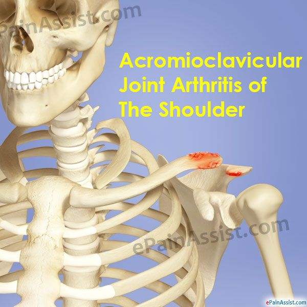Acromioclavicular Joint Arthritis Of The Shoulder Read: http://www.epainassist.com/arthritis/acromioclavicular-joint-arthritis-of-the-shoulder