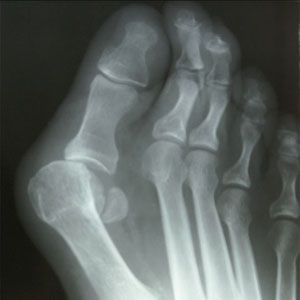 How can I improve foot health?