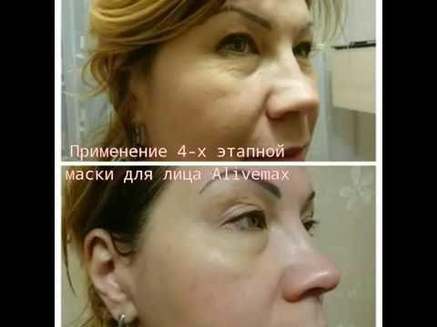 Фото до и после применения спреев Alivemax Часть 2  Папиломы, демодекоз,...