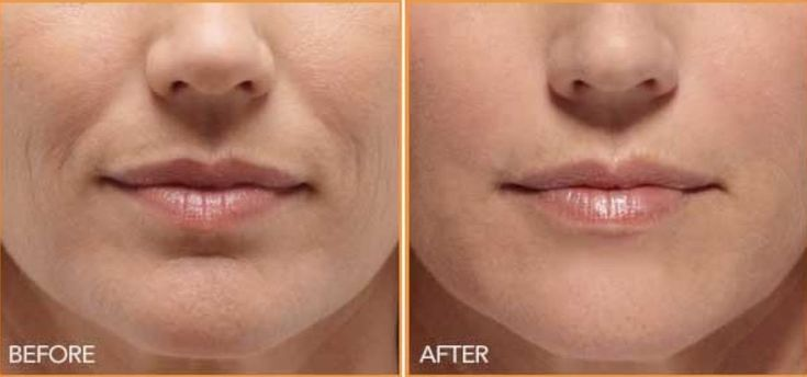 """Πώς Έδιωξα Τις Ρυτίδες Γύρω Από Το Στόμα Σε 3 Ημέρες Με Φυσικό Τρόπο Χωρίς Ενέσεις Η """"παρένθεση του στόματος""""κάνει ένα άτομο να φαίνεται 10 χρόνια μεγαλύτ"""