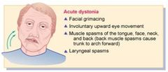 Acute Dystonia = an extrapyramidal symptom that can occur with metoclopramide usage... deviation of the head and eyes, involuntary tongue movements... treat this with IV DIPHENHYDRAMINE (it is an anticholinergic that also has anticholinergic properties) ... if not responsive to diphenhydramine, then try benztropine