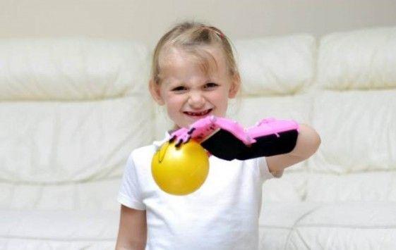 Η συγκλονιστική ιστορία αυτού του κοριτσιού! Ένας εκτυπωτής 3D θα της αλλάξει τη ζωή!