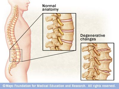 bone spurs on spine