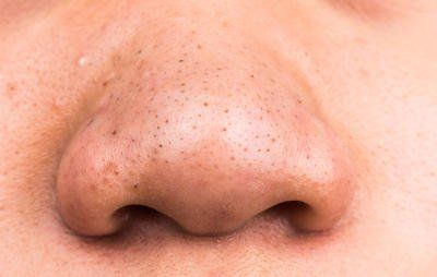 Ask Dr. Pimple Popper: 'How Do I Get Rid Of My Disgusting Blackheads?'  https://www.womenshealthmag.com/beauty/dr-pimple-popper-blackheads-treatment