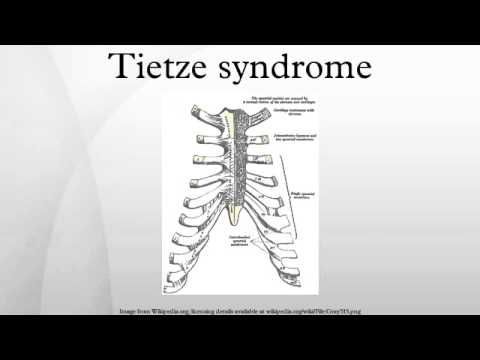 Tietze syndrome - YouTube