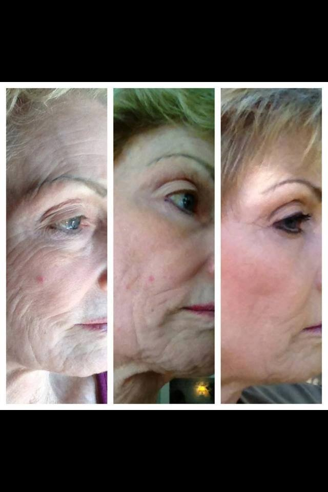 This is AMAZING!!! Seacret RECOVER MASK Regimen: 12 week results Apply RECOVER MASK once a week along with 4 green line products daily: - Eye serum - Eye cream - Face serum - Face moisturizer Photo is before Seacret evolving through week 12. HUGE difference! Look>> http://beta.seacretdirect.com/KT68/en/us/