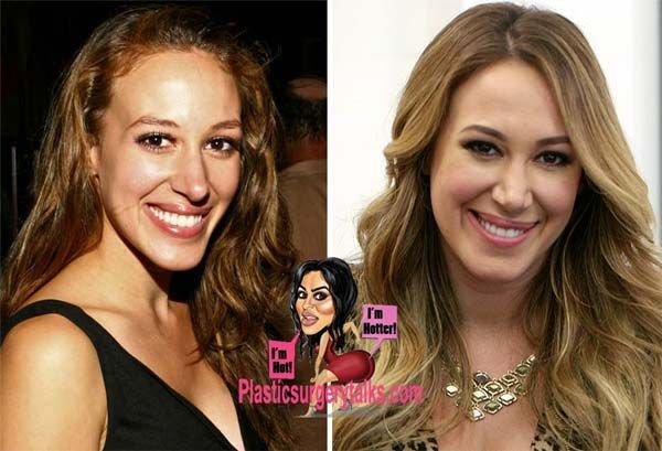 Haylie Duff Plastic Surgery -  Nose Job & Chin Reduction - http://plasticsurgerytalks.com/haylie-duff-plastic-surgery-nose-job/