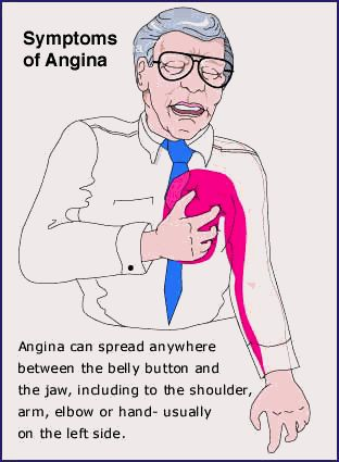 Symptoms of Angina Angina   Causes, Location, Pictures, Symptoms And Treatment